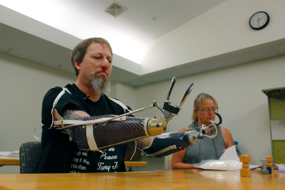 In this Aug. 19, 2019 photo, Greg Manteufel tries out a new prosthetic arm during occupational therapy at Froedtert & the Medical College of Wisconsin, in Milwaukee, as his wife Dawn Manteufel reads paperwork in the background. Manteufel lost parts of his arms and legs, as well as the skin of his nose and part of his upper lip from capnocytophaga, a bacteria commonly found in the saliva or cats and dogs that almost never leads to people getting sick, unless the person has a compromised immune system. He was perfectly healthy when he got sick in June of 2018. Over the last seven years, a team of researchers at Brigham and Women's Hospital in Boston, connected to Harvard Medical School, have tested other healthy people who were affected and developed a theory on why they were affected- a gene change in all the victims. (AP Photo/Carrie Antlfinger)