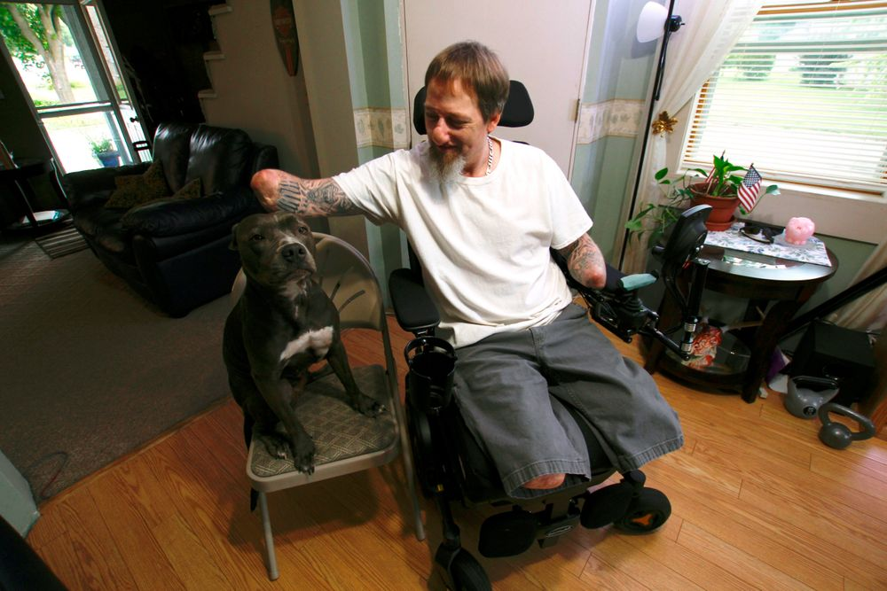 In this Aug. 16, 2019 photo, Greg Manteufel pets his dog Ellie at his home in West Bend, Wis. Manteufel lost parts of his arms and legs, as well as the skin of his nose and part of his upper lip from capnocytophaga, a bacteria commonly found in the saliva or cats and dogs that almost never leads to people getting sick, unless the person has a compromised immune system. He was perfectly healthy when he got sick in June of 2018. Over the last seven years, a team of researchers at Brigham and Women's Hospital in Boston, connected to Harvard Medical School, have tested other healthy people who were affected and developed a theory on why they were affected- a gene change in all the victims. (AP Photo/Carrie Antlfinger)