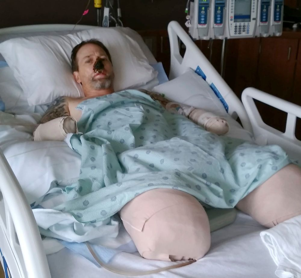 In this Aug. 2, 2018 file photo provided by Dawn Manteufel, Greg Manteufel lays in his hospital bed at Froedtert Hospital in Milwaukee. He lost parts of his arms and legs, as well as the skin of his nose and part of his upper lip from capnocytophaga, a bacteria commonly found in the saliva or cats and dogs which almost never leads to people getting sick, unless the person has a compromised immune system. Manteufel was perfectly healthy when he got sick in June of 2018. Over the last seven years, a team of researchers at Brigham and Women's Hospital in Boston, connected to Harvard Medical School, have tested other healthy people who were affected and developed a theory on why they were affected- a gene change in all the victims. (Dawn Manteufel via AP)