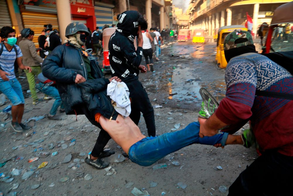 An injured protester is rushed to a hospital during clashes between security forces and anti-government protesters in Baghdad, Iraq, Sunday, Nov. 24, 2019. At least 342 people have died since demonstrations began Oct. 1, when thousands of Iraqis, mostly youth, took to the streets to decry corruption and poor services. The leaderless uprising seeks to overthrow the political establishment. (AP Photo/Khalid Mohammed)